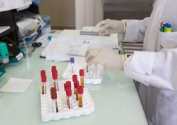 Une paillasse du laboratoire de biologie médicale